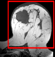 RegLib C06: Breast MRI pre/post