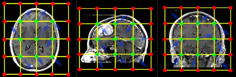 B-spline example from 3D Slicer documentation