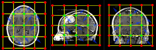 Example of a 3x3x3 BSpline grid placed over the entire image. Note that the 3x3x3 grid refers to the green center points, which are allowed to move freely. The additional (red) boundary points do not move.