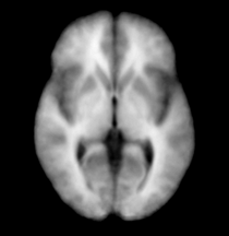 EMSegmenter MRIHumanBrainParcellation t1.png
