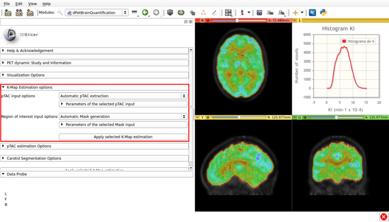 Figure 8. Screencap of the K-Map estimation panel. The estimated K-Map volume is overlaid over the dPET scan.